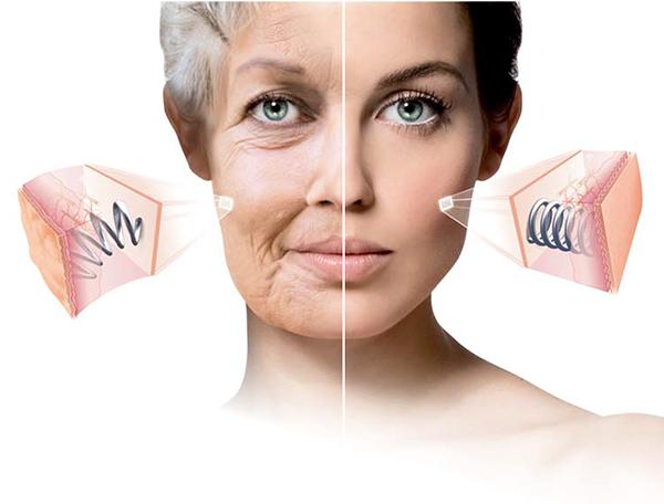 THE DNA OF LPG - バッドニュース 年を重ねた肌はたるみ、厚くなり、シワができる…肌密度の低下-